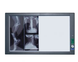 X-Ray View Box – Double